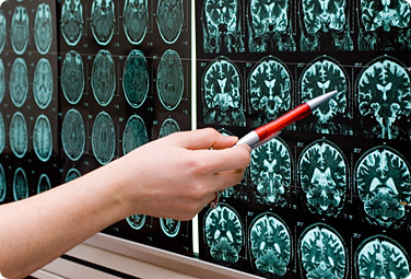 MRI brain scans being analyzed